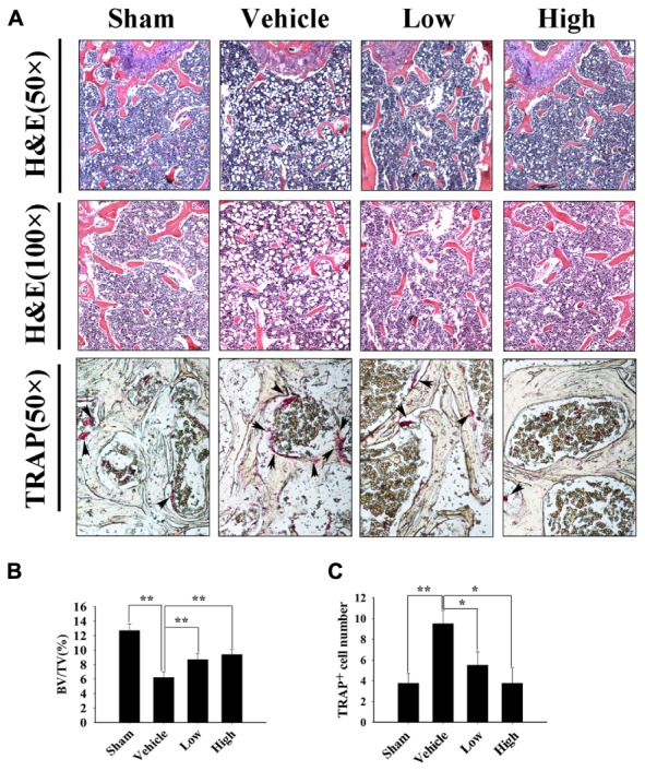 Pra-C prevents ovariectomized (OVX) mouse bone loss as assessed with histological and histomorphometric analyses. (A) Decalcified bone tissue was paraffin-embedded and sectioned for hematoxylin and eosin, as well as tartrate-resistant acid phosphatase (TRAP) staining. Representative microscopic images are shown at the indicated magnification. Increased bone loss and TRAP-positive osteoclasts were observed in vehicle-treated OVX mice, whereas Pra-C treatment reversed the pathology, bone loss, and the number of mature osteoclasts was obviously reduced. The black arrowheads represent TRAP-positive osteoclasts observed on the surface of trabecular bone below growth plate. (B) Bone volume to tissue volume (BV/TV) and (C) the number of TRAP-positive mature osteoclasts was counted in each sample using BioQuant software. All plotted data are the means ± SE ( n = 5). ∗ P
