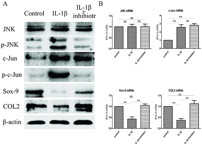 Inhibit JNK/c-Jun signaling pathway increase Sox-9 and COL2 expression (A) Western blot was used to evaluate the change of JNK, p-JNK, c-Jun, p-c-Jun, Sox-9 and COL2 protein levels in different groups. (B) Relative levels JNK, c-Jun, Sox-9 and COL2mRNA in the chondrocytes. The 2 −ΔΔCt method was adopted with GAPDH as the reference gene. Bars represent the mean ± SD of each group (n = 6). As a control, the membrane was stripped and incubated with β-actin. Significant differences between the groups are marked with asterisks (* P