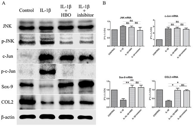 Western blot and RT-qRCR showed the change in expression of JNK/c-Jun signaling pathway, Sox-9 and COL2 (A) Western blot was used to evaluate the change in expression of JNK, p-JNK, c-Jun, p-c-Jun, Sox-9 and COL2 protein levels in different groups. (B) Relative levels JNK, c-Jun, Sox-9 and COL2mRNA in the chondrocytes. The 2 −ΔΔCt method was adopted with GAPDH as the reference gene. Bars represent the mean ± SD of each group (n = 6). As a control, the membrane was stripped and incubated with β-actin. Significant differences between the groups are marked with asterisks (* P