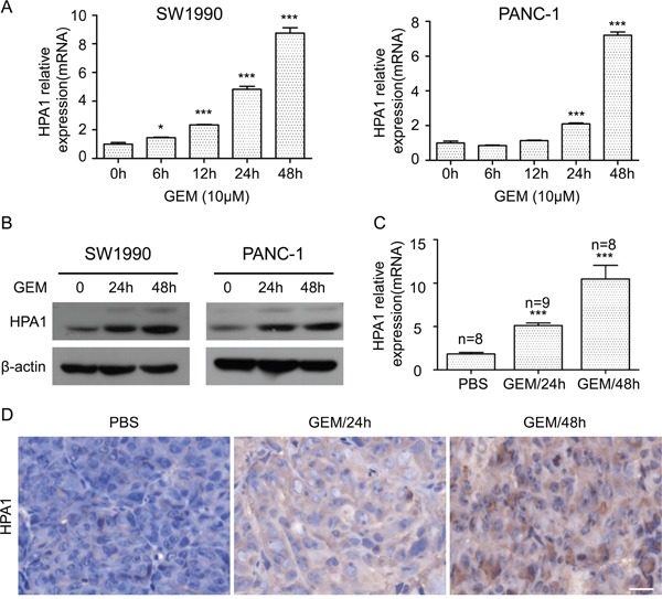 Gemcitabine induces the expression of HPA1 in PC cells in vitro and in vivo (A) The mRNA expression of HPA1 was determined using qRT-PCR in SW1990 ( left panel ) and PANC-1 ( right panel ) cells with or without 10 μM gemcitabine treatment for the indicated times. Results are representative of three independent experiments. (B) Western blot analysis was used to determine protein abundance of HPA1 after treatment with 10 μM gemcitabine at the indicated time points. (C) BALB/c nude mice bearing SW1990 xenografts were administered a single dose of vehicle (PBS) or gemcitabine (GEM, 50 mg/kg) for either 24 or 48 h. Tumor tissues were obtained and HPA1 mRNA levels were analyzed by qRT-PCR. (D) Immunohistochemistry was applied to detect the expression of HPA1 in xenografts following treatment with gemcitabine. Representative images are shown with a scale bar of 20 μm. *p
