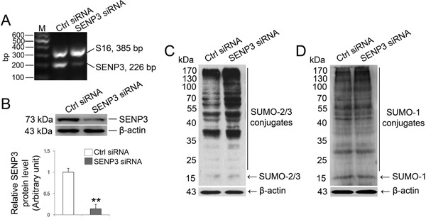 SENP3 depletion intervene SUMO-2/3-ylation profile in Sertoli cells Sertoli cells cultured for 3 d were processed to introduction of SENP3 siRNA or control siRNA at 100 nM, respectively, for 48 h prior to further assays. (A) Expression of SENP3 in Sertoli cells determined by RT-PCR analysis using primer specific to SENP3 with S16 served as the loading control. (B) Sertoli cells were lysed for determination of SENP3 expression by immunoblot analysis with anti-SENP3 antibody. Relative band intensity normalized to β-actin was shown in the below panel. SUMO2/3-ylation (C) and SUMO1-ylation (D) dynamics were detected in Sertoli cells. Each bar in the graph was presented as mean ±SD of at least three independent experiments. *, p