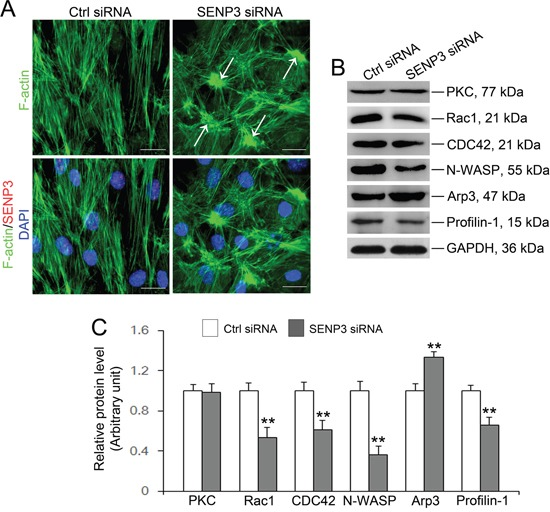 SENP3 knockdown disrupts actin microfilaments reorganization in Sertoli cells by dysfunction of Arp3 and Profilin-1 (A) Effects of SENP3 on the actin cytoskeleton in Sertoli cells. Sertoli cells cultured for 2 d were transfected with control or Senp3 siRNA. Two days thereafter, Sertoli cells were fixed and processed for FITC-phalloidin (F-actin, green) staining or immunofluorescence staining of SENP3 (red). DNA was visualized with DAPI (blue) staining. Significantly, Sertoli cells depleted for SENP3 were prominently featured by disorganized actin microfilaments with dense clusters (annotated by white asterisk). (B) Immunoblot analysis of selected regulators of actin dynamics as indicated, and the relative bands intensities normalized to GAPDH were shown in (C) . Notably, up-regulation of Arp3 and down-regulation of Rac1, CDC42, N-WASP, and Profilin-1 were observed by SENP3 depletion. Scale bars: 20 μm. Each bar in the histogram is a mean ±SD of n=3 experiments. *, p