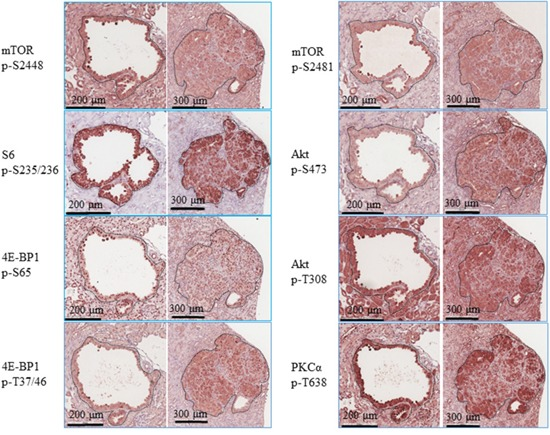 PI3K/Akt/mTOR signalling in renal tumours of Tsc2 +/- mice Kidney sections prepared from 14 months old Tsc2 +/- mice were used for IHC analysis. Representative IHC-stained sections were presented to show phosphorylation of mTOR at S2448 and S2481, S6 at S235/236, 4E-BP1 at T37/46 and S65, and Akt at T308 and S473 in renal tumours. Twenty cystic and 20 solid renal lesions from 10 Tsc2 +/- mice were analysed consistently showing similar protein phosphorylation levels. Black lines are scale bars.