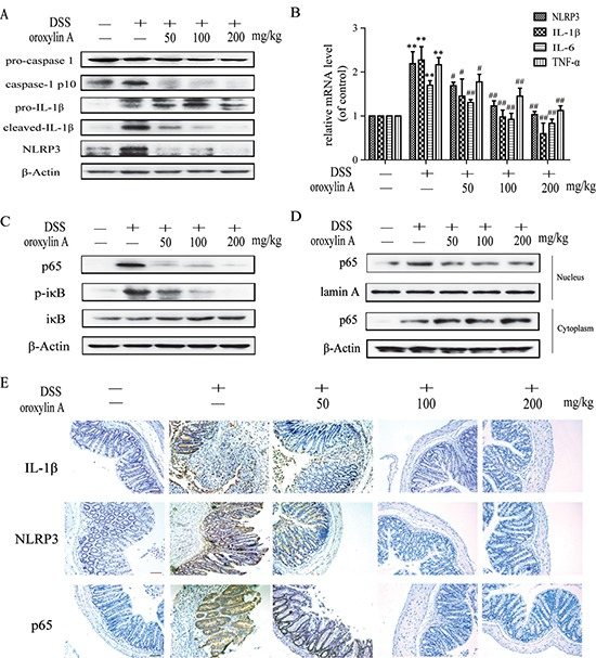 Oroxylin A suppressed the activation of NLRP3 inflammasome in DSS-induced chronic colitis ( A ) The protein levels of cleaved-caspase-1 (caspase-1 p10), cleaved-IL-1β and NLRP3 in colonic tissues were detected by western blot. ( B ) The mRNA levels of NLRP3, IL-1β and IL-6 in colonic homogenate were determined by real-time RT-PCR. ( C ) The NF-κB p65, IκBα phosphorylation in colonic tissues were detected by western blot. ( D ) The relative expressions of cytoplastic protein and nuclear protein NF-κB p65 in colonic tissues were assessed by western blot. ( E ) <t>Immunohistochemistry</t> of IL-1β, NLRP3 and p65 in colonic tissues of each group was measured. Brown colored is positive (scale bar, 100 μm). Data were shown as means ± SD ( n = 3). Statistical analysis was performed using one-way ANOVA coupled with a post hoc test. Significant differences were indicated as * P