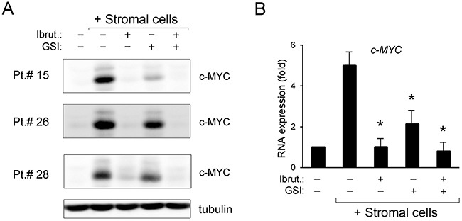 Down-regulation of c-MYC pathway by ibrutinib±GSI in primary B-CLL cell cultures Patients' derived B-CLL cells co-cultured with stromal cells were exposed to Ibrutinib±GSI for 24 hours or were grown untreated in suspension as control. In (A) , Western blotting analyses of c-MYC protein levels are shown for representative primary B-CLL patients. For clarity, tubulin is shown as loading control for one patient. In (B) , levels of c-MYC mRNA were analyzed by <t>qRT-PCR</t> and are expressed as fold of modulation with respect to the untreated B-CLL cultures grown in suspension set at 1. Results are reported as mean±SD of four independent experiments, performed in duplicate. The asterisk indicates p