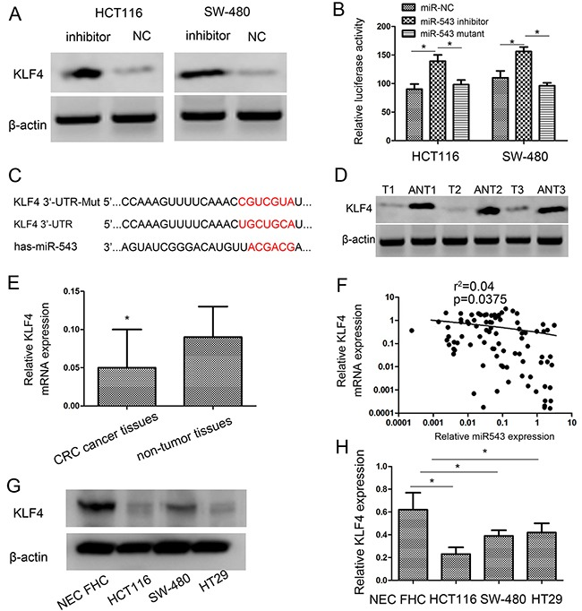 <t>KLF4</t> is a direct target of miR-543 and KLF4 expression is inversely correlated with miR-543 expression in CRC tissues (A) Western blot analysis of KLF4 protein expression after transfection in HCT116 and SW-480 cells. (B) Luciferase activities of wild-type and the mutant pmirGLO- KLF4 -3′-UTR reporter in HCT116 and SW-480 cells. (C) The predicted miR-543 binding site on the KLF4 mRNA 3′-UTR and the corresponding mutations in 3′-UTR of KLF4 . (D, E) KLF4 expression on protein level (D) and mRNA level (E) was determined in CRC tissues (T) and adjacent nontumorous tissues (ANT). (F) Spearman's correlation analysis was performed to detect the association between the expression level of miR-543 and KLF4 in GC tissues. (G, H) KLF4 expression on protein level (G) and mRNA level (H) was determined in three CRC cell lines (HCT116, SW-480 and HT29) and nontumorous mucosa. Error bars represent mean ± SD from three independent experiments. * p