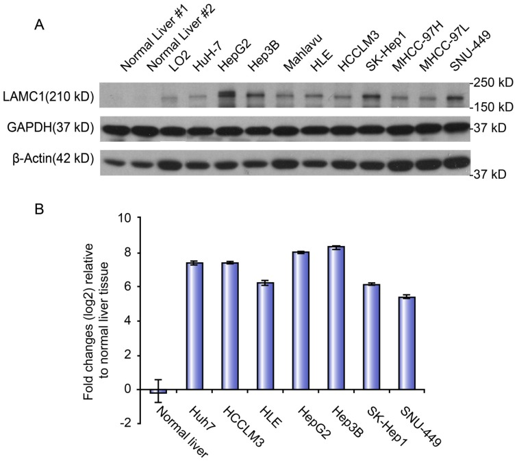 LAMC 1 expression in different HCC cell lines. A. LAMC 1 protein expression in different HCC cell lines, as assessed by western blotting. B. LAMC 1 mRNA levels in different HCC cell lines, as assessed by qRT-PCR.