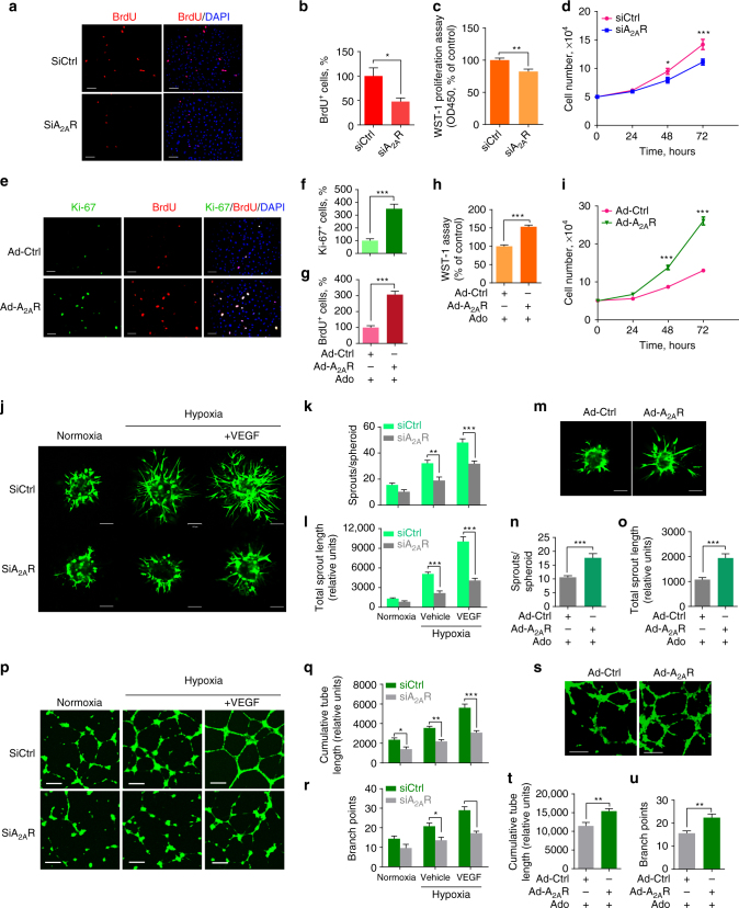 ADORA2A regulates HRMEC proliferation, sprouting and tube formation. a , b Bromodeoxyuridine (BrdU) staining of HRMECs transfected with siRNAs targeting human ADORA2A (siA 2A R) or with a non-targeting negative control (siCtrl) under hypoxia conditions (0.5% O 2 ). n = 6. * P