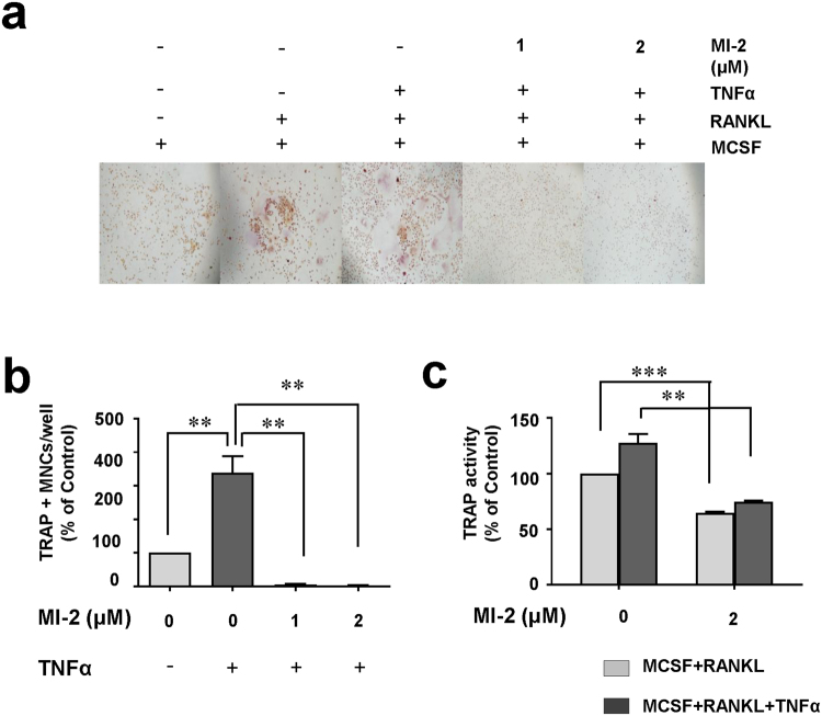 The MALT1 inhibitor MI-2 reduced osteoclast formation in the presence of TNFα. Inhibitory effects of MI-2 on osteoclast formation from monocytes in the presence of 20 ng/mL TNFα, as determined by performing in vitro osteoclast-differentiation assays. ( a ) Representative microscopic images from 3 independent experiments are shown. ( b ) Relative abundances (%) of TRAP-positive osteoclasts per well. Pooled results are shown from 3 independent experiments. ( c ) TRAP enzyme activities (%) in untreated cells and cells treated with the indicated concentrations of MI-2. *, **, and *** indicate significant differences from control (untreated) cells based on 2-tailed unpaired Student's t -tests at P