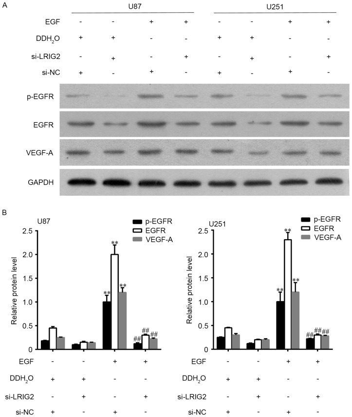 U87 and U251 cell lines were transfected with si-LRIG2 or si-NC, then treated with 100 ng/ml EGF or DDH 2 O for 24 h. (A) The protein expression level of EGFR, p-EGFR and VEGF-A were assessed by western blot assay. (B) The densitometry data of western blotting. **P
