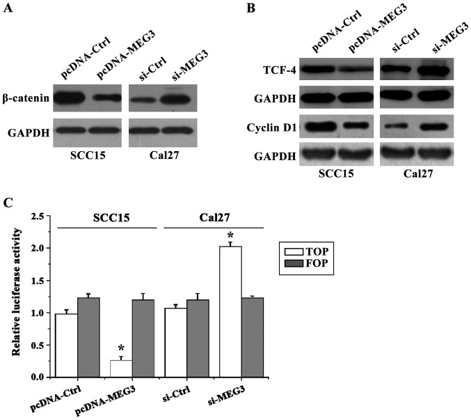 The activity of WNT/β-catenin pathway detected by western blot analysis and TOP/FOP flash experiments. The western blot results showed that overexpression of MEG3 resulted in decreased expression of β-catenin protein compared with the control group, so as to decrease the levels of downstream TCF-4 and cyclin D1 protein, while opposite results were found in cells with MEG3 silencing. The results of TOP/FOP flash experiments showed that the activity of luciferase was decreased by the transfection of MEG3 overexpression vector compared with the control group, while the activity of luciferase was increased after transfecting with MEG3 interference vector (*p