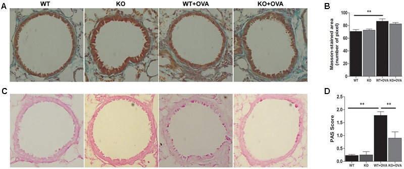 Gene deletion of KCa3.1 prevented established airway remodeling. (A) Representative images were obtained of Masson trichrome-stained lung sections from WT, KO, WT + OVA, and KO + OVA groups (original magnification, X 30). (B) Random measurements from the basement membrane into the submucosa (10 measurements of 20 μm in length) were taken, and the mean density was calculated from four bronchi per mouse ( n = 5). ∗∗ p