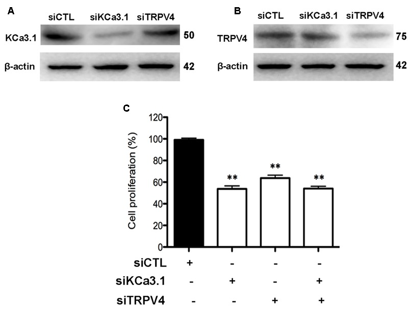 KCa3.1 and TRPV4 involvement in HBSM cells proliferation. (A) Representative western blot showing the effect of siRNAs directed against KCa3.1 and TRPV4 on the protein level of KCa3.1. (B) Representative western blot showing the effect of siRNAs directed against KCa3.1 and TRPV4 on the protein level of TRPV4. (C) Analysis of HBSM cells proliferation transfected with siCTL, siKCa3.1, or siTRPV4. Cell proliferation (CCK-8 assay) was measured as described in methods 72 h post-transfection. Values were reported as means ± SEM normalized to the control ( n = 4). ∗∗ p