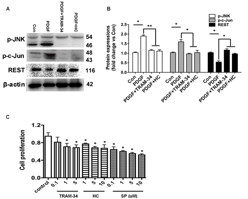 KCa3.1 and TRPV4 involvement in HBSM cells proliferation via JNK/c-Jun pathways. (A) p-JNK, p-c-Jun, and REST protein expressions in 1h PDGF stimulated HBSM cells with or without pretreatment of TRAM-34 (1 μM) or HC 067047 (10 μM). (B) Data were presented as means ± SEM. n = 5, ∗ p