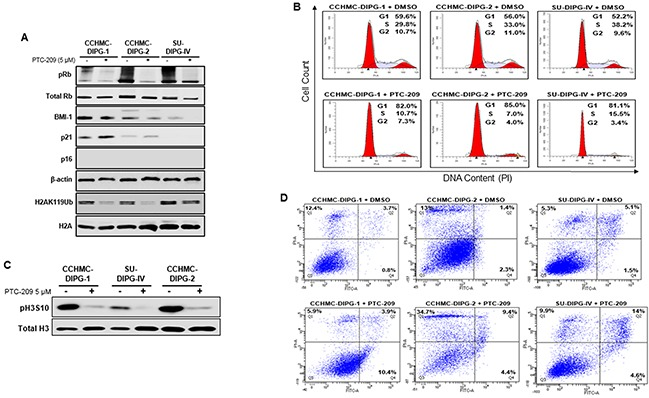 BMI-1 downregulation affects RB pathway, induces G 1 /S cell-cycle arrest and apoptosis in DIPG cells (A) Immunoblot analysis of pRB, total Rb, BMI-1, p21, p16 ink4A and H2AK119Ub extracted from DIPG cell lines treated with DMSO or PTC-209. β-actin and total H2A served as loading controls. (B) Cell cycle analysis of PTC-209 treated DIPG cells. DMSO treatment represents the control. Analysis was performed by gating on live cells only. Percentage of cells in G 1 , S and G 2 /M is indicated. (C) Immunoblot analysis of pH3S10, a marker of mitosis. Total H3 served as loading control. (D) Flow-cytometry analyses of PTC-209 or DMSO treated DIPG cells stained with annexin-V and propidium iodide (PI). The percentage of apoptosis (lower far right quadrant) and overall cell death (upper far right quadrant) is indicated. In all experiments, cells were either treated with DMSO or 5 μM PTC-209 for 3 days.