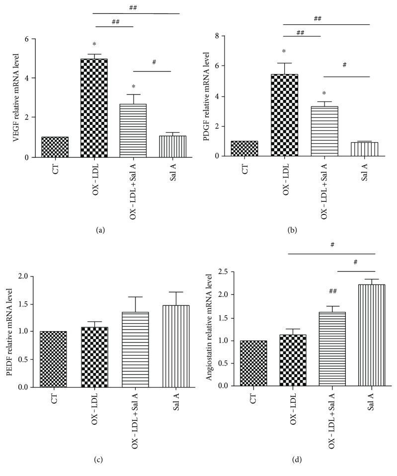 Real-time PCR analysis of VEGE, PDGF, PEDF, and angiostatin mRNA expression in four groups 7 days after laser. (a, b) OX-LDL injection increased both VEGF and PDGF mRNA expression compared with the PBS group, while OX-LDL + Sal A group reduced VEGF and PDGF mRNA expression compared with the OX-LDL group. (c) There was no difference between each group in PEDF gene expression. (d) The OX-LDL + Sal A group and Sal A group increased angiostatin gene expression compared with the PBS and OX-LDL groups. Data were expressed as mean ± SEM ( n = 10 eyes/group). ∗ P