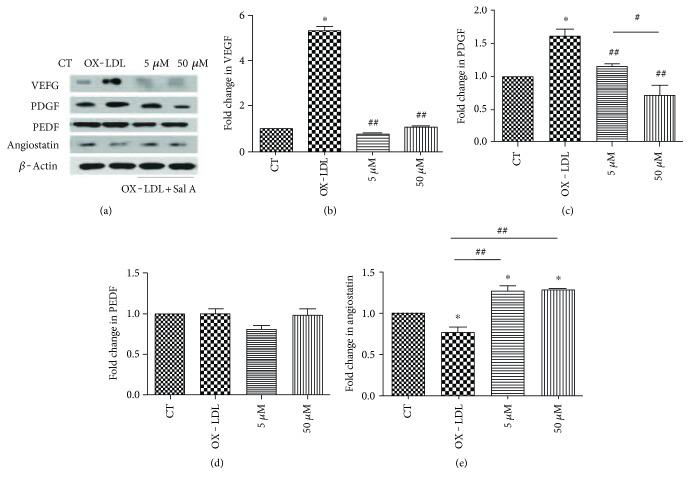 Angiogenesis proteins expression in ARPE-19 cells after OX-LDL and Sal A treatment. ARPE-19 cells were divided into control, OX-LDL(100 mg/L), and OX-LDL (100 mg/L) + Sal A (5 μ M/50 μ M) groups and cultured for 48 hours. (a) Western blot showing changes in VEGF, PDGF, PEDF, and antiangiostatin in ARPE-19 cells 48 hours after treatment. (b–e) Quantitative densitometry results showing that OX-LDL increased VEGF and PDGF levels compared with the control group, while the OX-LDL + Sal A group decreased VEGF/PDGF and slightly increased antiangiostatin level compared with the OX-LDL group. There was no significant difference between each group in PEDF level. Data were expressed as mean ± SEM. ∗ P
