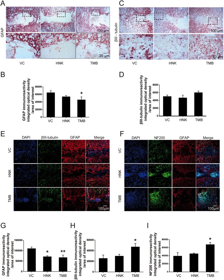 GFAP, βIII-tubulin and NF200 immunoreactivity at 6 weeks after SCI in mice treated with trimebutine or honokiol. (A-I) Representative micrographs of GFAP (A,E,F), βIII-tubulin (C,E) and NF200 (F) staining, and quantitative analysis of intensity of GFAP (B,G), βIII-tubulin (D,H) and NF200 (I) immunoreactivity. * P