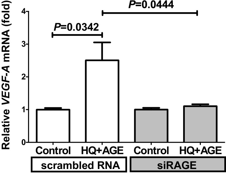 Effect of siRNA against RAGE on HQ + AGE-induced VEGF expression. SiRNA of RAGE was transfected into h1RPE7 cells and the cells were incubated with HQ + AGE for 24 h. VEGF-A mRNA levels were measured by real-time RT-PCR using β-actin as an endogenous control. Data are expressed as mean ± SE for each group (n = 4).