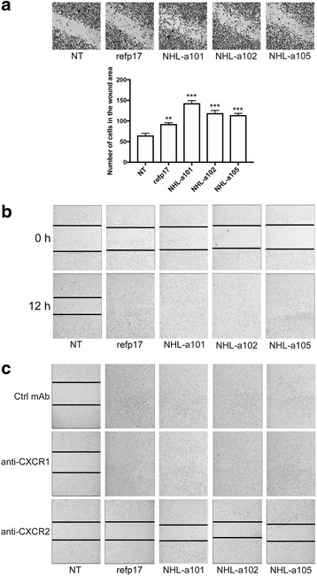 Refp17 and vp17s promote breast cancer cells migration. In the wound-healing assay, confluent MDA-MB 231 cell monolayers were serum starved for 24 h and then scratched using a 200 μl pipette tip. Cells were cultured in complete medium either unsupplemented or containing 10 ng/ml of refp17 or vp17s. a After 6 h of culture cells were fixed and stained with Coomassie brilliant blue. The cells migrated into the wound area were counted. b The percentage of wound healing was observed over a period of 12 h. c Wound healing assay was performed pretreating MDA-MB 231 cells for 1 h with a neutralizing mAb to CXCR1 (2.5 μg/ml), CXCR2 (2.5 μg/ml), or with an isotype-matched mAb (Ctrl mAb; 2.5 μg/ml). Images are representative of three independent experiments with similar results (original magnification 10×). Statistical analysis was performed by one-way ANOVA and the Bonferroni's post-test was used to compare data (** p