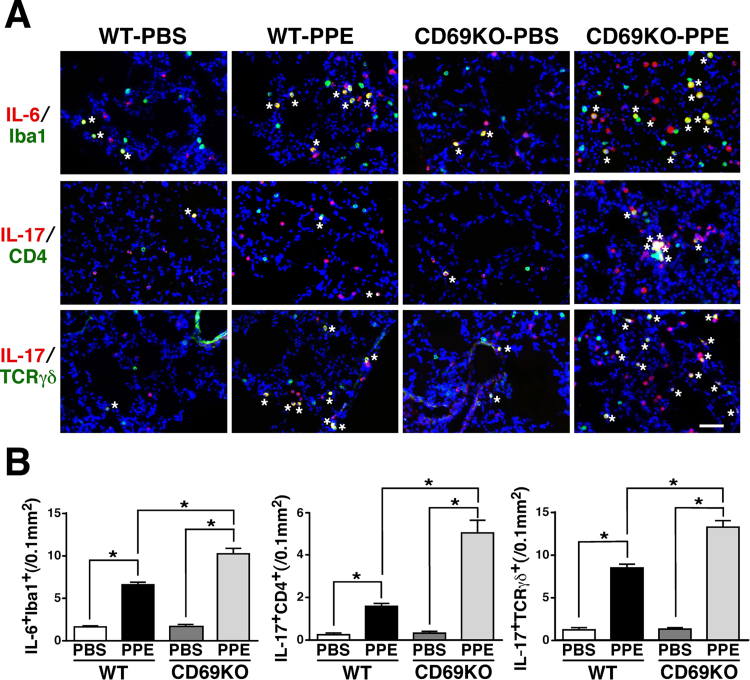 Immunofluorescent study for IL-6- and IL-17-producing cells in WT and CD69KO mice. A) Predominant IL-6- and IL-17-producing cells in the lung of the two genotypes instilled with PPE. Lung sections from WT and CD69KO mice at 1 dpi were reacted with the designated combination of antibodies. Asterisks indicate double-positive cells. Scale bar represents 50 µm. B) The PPE-increased and CD69-deficinecy-sensitive IL-6 + Iba1 + , IL-17 + CD4 + and IL-17 + TCRγδ + cells. Data are shown as mean±S.E.M. (n=8). * P