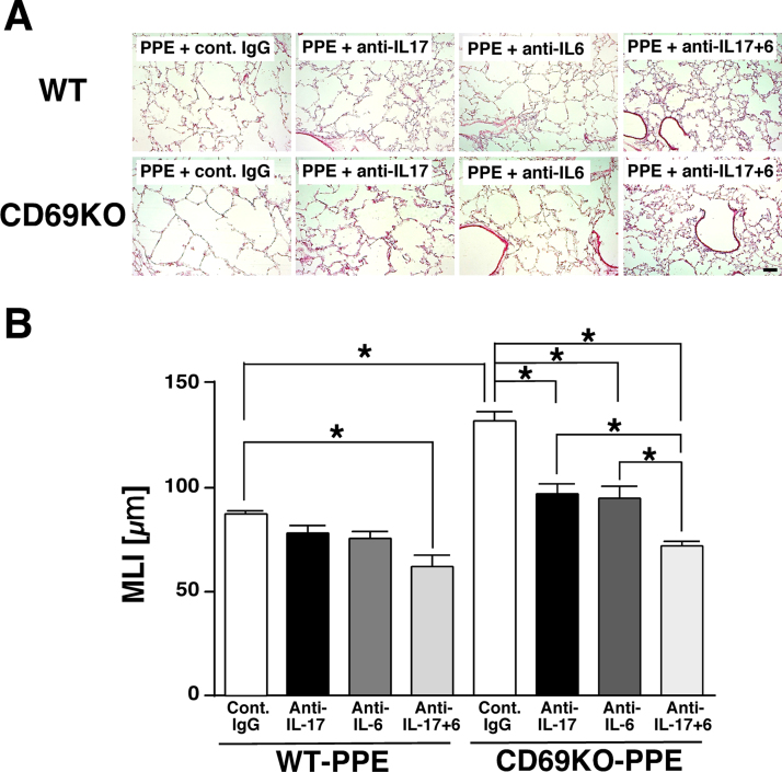 Effects of IL-6- and IL-17-neutralizing antibodies on elastase-induced lung emphysematous changes in WT and CD69KO mice. A) Typical histopathological changes of the lungs. Scale bar represents 100 µm. B) MLI, an index of enlargement of alveolar airspaces. Data are shown as mean±S.E.M. (n=4–6). * P