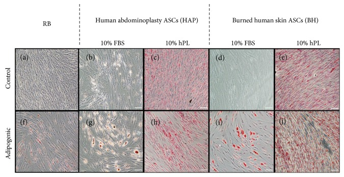 Light micrographs of Oil red O staining. ASCs bought from a commercial vendor (RB) were compared to ASCs derived from abdominoplasty (HAP) or burned human skin (BH) cultured in <t>DMEM</t> with 10% <t>FBS</t> and 10% hPL and differentiated under adipogenic conditions with identical supplements for 14 days, then stained for lipid accumulation by Oil red O. Representative images of undifferentiated RB (a), HAP cells (b, c), and BH cells (d, e) from control media conditions and differentiated RB (f), HAP cells (g, h), and BH (i, j) are given. White scale bar represents 100 μ m.