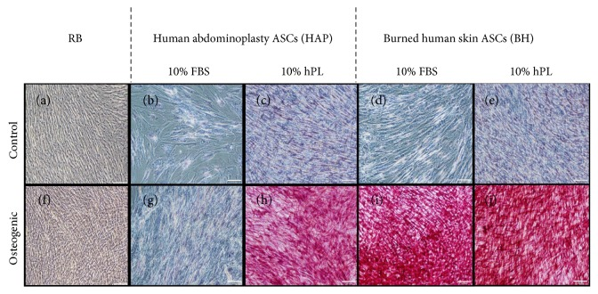 Light micrographs of Alizarin red S staining. ASCs bought from a commercial vendor (RB) were compared to ASCs derived from abdominoplasty (HAP) or burned human skin (BH) cultured in α MEM with 10% FBS and 10% hPL and differentiated under osteogenic conditions with identical supplements for 14 days, then stained to assess mineralization. Representative images of undifferentiated RB (a), HAP cells (b, c), and BH cells (d, e) from control media conditions and differentiated RB (f), HAP cells (g, h), and BH (i, j) are given. White scale bar represents 100 μ m.