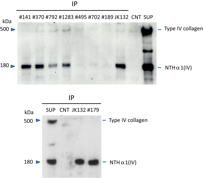 Screening of antibodies by immunoprecipitation and western blotting . Three micrograms of each antibody designated in the figure was incubated with the supernatant of HLF cell cultured medium and the antibody was precipitated with anti-mouse IgG antibodies. The precipitates were subjected to western blotting under nonreducing condition. A <t>polyclonal</t> antibody for human type IV collagen, Ab6586, was used to detect NTH α1(IV) and type IV collagen polypeptides. A band migrating at 180 kDa on the blot is NTH α1(IV). A band migrating at ~500 kDa corresponds to a trimer of three α chains of the type IV collagen molecule, which are connected by interchain disulfide bondings. IP, immunoprecipitation; SUP, supernatant; CTN, control. ( a ) In the first screening, immunoprecipitates of seven prepared antibodies #141, #370, #792, #1283, #495, #702 and #189, were tested for the samples developed on 4.5% SDS-PAGE under nonreducing conditions. Three antibodies, #141, #370 and #1283, were selected for further analysis by sandwich ELISA to distinguish overlapping epitopes. ( b ) In the second screening, only #179 was selected because of its unique binding characteristics, as described in Table 2 .