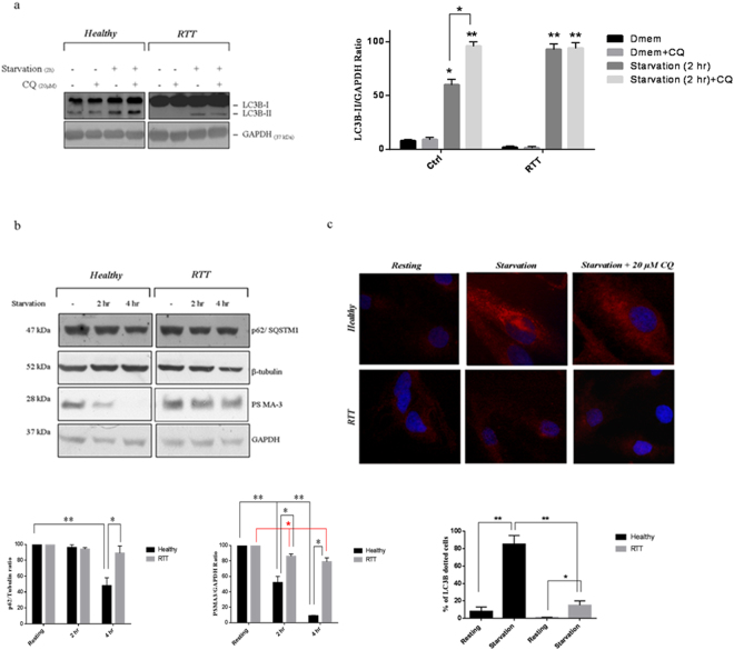 Defective autophagy activation in RTT fibroblasts. ( a ) WB analysis of RTT and healthy fibroblasts cultivated either in DMEM or starvation medium (2 h) in the presence or absence of 20 µM of CQ ( upper panel ). Filters were probed with an anti-LC3B or an anti-GAPDH antibody. A representative immunoblot of three independent experiments performed on the cell lines available (n = 4 for both the healthy and the RTT fibroblasts) is reported. Densitometric determination of LC3B to GAPDH content was performed by ImageJ software ( lower panel ). Results are the means ± S.E. of three independent experiments. Differences between the different experimental conditions in the same group are significantly different (* p