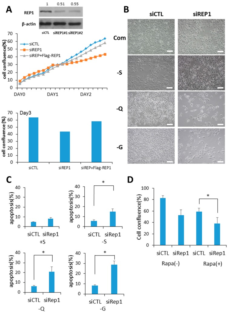 Rab escort protein1 (REP1) depletion suppresses cell growth and survival. ( A ) MiaPaCa2 cells were transfected with control (CTL) and REP1 small interfering RNAs (siRNAs). After 48 h, immunoblotting was performed to analyze REP1 protein levels. Cells were treated with CTL and REP1 siRNAs and incubated for 24 h. Then, the cells were transfected with Flag-REP1 plasmid additionally and further incubated in the IncuCyte TM for monitoring cell proliferation. At the 72-h incubation time point, cell confluence levels were presented as a percentage using the IncuCyte TM analyzer. ( B , C ) MiaPaCa2 cells were transfected with control and REP1siRNAs, which replaced the following day with serum-, glucose-, or glutamine-free medium and then incubated for another 24 h.Cell morphology was observed by brightfield image. Scale bar: 50 μm ( B ). Cell death was assessed by using the Annexin V/propidium iodide (PI) assay ( C ). Error bars indicate mean +/− standard error for n = 3 independent experiments. ( D ) MiaPaCa2 cells were transfected with control (CTL) or REP1siRNAs, which replaced the following day with 1 µM rapamycin and then further incubated for monitoring cell confluence using IncuCyte TM . At 72 h time point, cell confluence levels were presented as percentage. Statistical significance was determined via t-test; * p