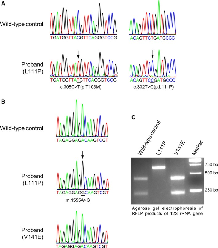 COQ7 gene variants and a mitochondrial DNA mutation identified in the patient under study. ( A ) COQ7 gene variants. Sequencing chromatograms are shown for the c.308C > T and c.332T > C variants detected in COQ7 in the proband reported in this study, with the wild‐type sequence at the top. The chromatograms also show that the patient is homozygous for both the c.308C > T [p. Thr103Met] polymorphism and the c.332T > C [p.Leu111Pro] mutation. ( B ) Chromatograms showing a partial sequence of the mitochondria 12S rRNA gene in a normal control, the L111P patient reported in this study or the previously reported COQ7 patient carrying the V141E mutation. Both patients and the normal control used in this study carry the m.1438A > G polymorphism. The L111P patient, in addition, carries the m.1555A > G mutation. Black arrows denote altered nucleotides. ( C ) RFLP of mitochondrial DNA. Shown is an agarose gel electrophoresis of PCR products from the mitochondrial 12S rRNA gene digested by BsmAI. Wild‐type control: skin fibroblasts from a healthy unrelated individual; L111P: the proband reported in this study; V141E: COQ7 patient previously reported in 19 . The PCR product (643 bp) without the m.1555A > G mutation was cleaved in two fragments of 409 and 234 bp, which was the case for the wild‐type control and the V141E patient. The PCR product from the L111P patient's 12S rRNA gene was not cut by BsmAI, as the m.1555A > G mutation abolishes the BsmAI restriction site. Moreover, only a single band corresponding to the mutated fragment was seen in the sample from the L111P patient. This, together with the sequencing chromatogram, demonstrates homoplasmy for the m.1555A > G mutation.