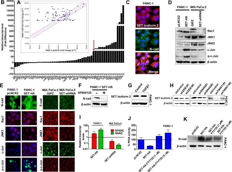 SET induced N-cadherin via the Rac1/JNK/c-Jun signaling pathway (A and B) In an RT-PCR profiler array for 84 EMT-related genes, 47 genes were upregulated and 12 genes were down-regulated (with fold changes ≥ 3) in SET overexpression cells (SET-HA) compared with control cells (pLNCX2). A representative scatter plot (A) and genes with respective fold-changes are shown (B). Red arrow indicates CDH2 (N-cadherin gene) as one of the highly upregulated gene (∼100 folds) in SET overexpression cells. (C) SET isoform 2 expression (red) partially co-localized with N-cadherin expression (green) at the cell surface (yellow) in PANC-1. (D) SET isoform 2 expression alters the protein levels of members in the Rac1/JNK/c-Jun pathway. Oppositely, a reduction in SET led to decreases in Rac1, JNK1, phospho-JNK, c-Jun, and phospho-c-Jun levels. Whole cell lysates (50 μg) were subjected to Western blotting analysis. β-actin, the internal loading control, is shown with a representative blot. (E) SET isoform 2 expression alters the cellular organizations and expressions of members in the Rac1/JNK/c-Jun pathway. (F) Treating cells with SP600125, a JNK inhibitor, decreased N-cadherin in the PANC-1 SET-HA. (G) TGFβ1 (10 ng/mL; 48 h) treatment did not alter SET expression levels in PANC-1. Whole cell lysates (50 - 70 μg) were subjected to Western blotting analysis. β-actin, a loading control is shown with a representative blot. (H) Stable knockdown of EMT-regulating transcription factors (ZEB1, SNAI2, and TWIST1) decreases SET protein levels in PANC-1. (I) Overexpression of SET in PANC-1 (SET-HA) led to significant increases in both SPARC and SNAI2 transcript levels while opposite effects were observed with the knockdown of SET in MIA PaCa-2 (SET-shRNA) as confirmed with qRT-PCR assays with respective TaqMan probes and GUSB as an internal control. (J and K) SET-mediated effects on N-cadherin are PP2A dependent in pancreatic cancer. (J) PP2A activity was decreased with SET overexpression (SET-H