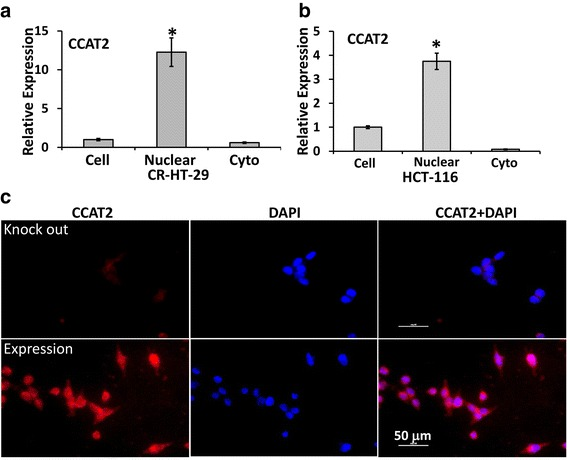 Localization of CCAT2 in CR-HT-29 or HCT-116 cells by qRT-PCR and FISH. qRT-PCR was performed with RNA isolated from nuclear and cytoplasmic fraction of stably over-expressing CCAT2 cells to determine its expression in CR-HT-29 and HCT-116 cells ( a and b ). All the data represent means ± SEM, * P