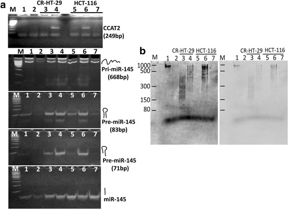 CCAT2 regulates miR-145 expression by directly suppressing its processing. Digoxigenin labeled 200 ng of pri-miR-145 (668 base) containing 1 μg of total RNAs from the CCAT2 overexpressing or knockout (KO) colon cancer cells was incubated at 25 °C for 5 min; 1unit of recombinant Dicer was added and incubated at 37 °C for 60 min. The samples were divided into two parts: ( a ) performed RT-PCR to detect CCAT2, pri-, pre- and mature miR-145. Agarose (3%) chromatography demonstrates changes in PCR products. ( b ) carried out electrophoresis on 8% polyacrylamide-8M urea gel, subsequently transferred onto membrane and the Dig-labeled RNAs detected with anti-digoxigenin antibody. M: 100 bp DNA (A) or RNA ladder (B), Lane-1: pri-miR-145, Lane-2: pri-miR-145 + Dicer, Lane-3: pri-miR-145 + RNA of CR-HT29 + Dicer, Lane-4: pri-miR-145 + RNA of CR-HT29/CCAT2 + Dicer, Lane-5: pri-miR-145 + RNA of HCT-116 + Dicer, Lane-6: pri-miR-145 + RNA of HCT-116/CCAT2 + Dicer, Lane-7: pri-miR-145 + RNA of HCT-116/KO-CCAT2 + Dicer