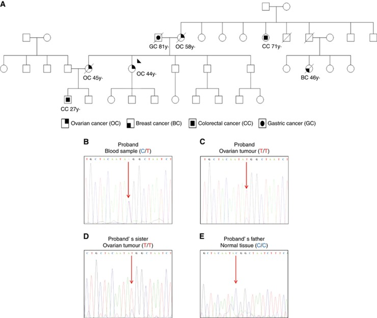 Spanish non-BRCA1/2 high-risk breast and ovarian cancer family selected for Whole Exome Sequencing (WES) study. ( A ) Proband is highlighted by a black arrow. Individuals with tumours and ages of diagnosis are shown. ( B ) Electropherograms of RAD51C sequence spanning the c.934C > T variant show the presence of the c.934C > T variant in the proband's blood sample. Sequence traces confirms loss of heterozygosity (LOH) in the proband's ( C ) and her sister's ( D ) ovarian tumours and RAD51C wild-type sequence in normal tissue from the proband's father ( E ). A full colour version of this figure is available at the British Journal of Cancer journal online.