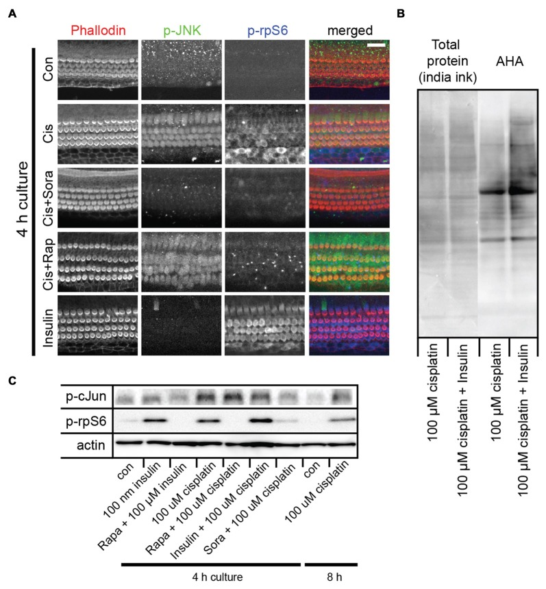 Cisplatin exposure activates both the c-Jun N-terminal kinase (JNK) and mammalian target of rapamycin (mTOR) pathways in sensory hair cells. (A) Cisplatin exposure resulted in a coordinated increase in phosphorylated JNK (p-JNK) and phosphorylated ribosomal protein S6 (p-rpS6) immunoreactivity, indicating an activation of the JNK and mTOR pathways. When explant cultures were exposed to both cisplatin and the multikinase inhibitor sorafenib (500 nM), the activation of JNK and mTOR pathways were inhibited. Rapamycin exposure did not alter the cisplatin-induced activation of JNK, but prevented activation of mTOR. When cultures were incubated with 100 nM insulin for 4 h, it resulted in robust activation of mTOR but not the JNK pathway (bottom panel). (B) AHA-biotin immunoblot showing that when administered with cisplatin, insulin lead to a 34% increase ( p -value 0.004) in overall cellular protein synthesis, when compared to cisplatin alone. (C) Immunoblot confirming cisplatin-induced activation of the JNK pathway (as measured by p-c-Jun) and mTOR (as measured by p-rpS6), and the modulation of this response by sorafenib, rapamycin and insulin. Scale bar 20 μm.