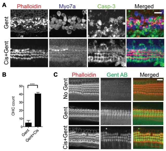 High-dose <t>cisplatin</t> cross-preserves hair cells exposed to toxic doses of gentamicin. (A) Mouse organ of Corti explant cultures exposed to 100 μM gentamicin (Gent) for 24 h results in significant hair cell loss (top panels). Additional supplementation of 500 μM cisplatin to the toxic concentration of gentamicin rescues the hair cells, albeit with severely reduced MYO7A immunoreactivity (bottom panels). (B) Outer hair cell counts per 100 μm (basal turn) after exposure to gentamicin with or without high dose cisplatin (Unpaired t -test, p -value: