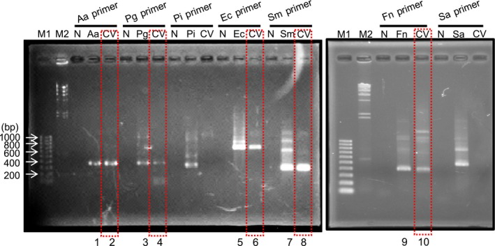 Detection of bacterial DNA by PCR . Amplified DNA was electrophoresed on 0.7% agarose gel and visualized by ethidium bromide staining. Bacterial DNA in cardiac valve ( CV ) was detected. Square with red dashed line shows detected bacteria from CV samples. DNA bands in numbered lanes (1–10) were extracted and used for DNA sequencing for homology search (Table 3 ). M1: DNA marker (100‐bp ladder); M2: DNA marker ( λ DNA digested by Hin d III ); N: negative control without bacterial DNA ; Aa ( Aggregatibacter actinomycetemcomitans ), Pg ( Porphyromonas gingivalis ), Pi ( Prevotella intermedia ), Ec ( Eichenerra corrodens ), Sm ( Streptococcus mutans ), Fn ( Fusobacterium nucleatum ), and Sa ( Staphylococcus aureus ): positive controls with appropriate bacterial DNA ; CV : test DNA sample extracted from cardiac valve obtained at her first cardiovascular surgery.
