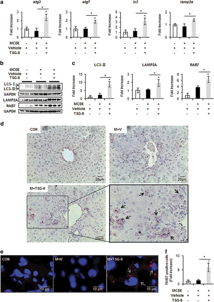TSG-6 increases expression of autophagy markers in livers of MCDE-fed mice. ( a ) qRT-PCR analysis of atg3 , atg7 , lc3 and lamp2a in livers from CON, M+V, and M+TSG-6-treated mice results are plotted (mean±s.d. n ⩾4 mice per group). ( b ) Western blot analysis and ( c ) cumulative densitometry analyses for LC3 (LC3-II: 14 kDa, processed form) (inducer of autophagosomes), LAMP2A (lysosome membrane protein) and RAB7 (autophagosome-lysosome docking marker) in livers of three representative mice from each group. GAPDH was used as an internal CON. Data shown represent one of three experiments with similar results. The results are displayed as the mean±s.d. ( n ⩾4 mice per group) (* P