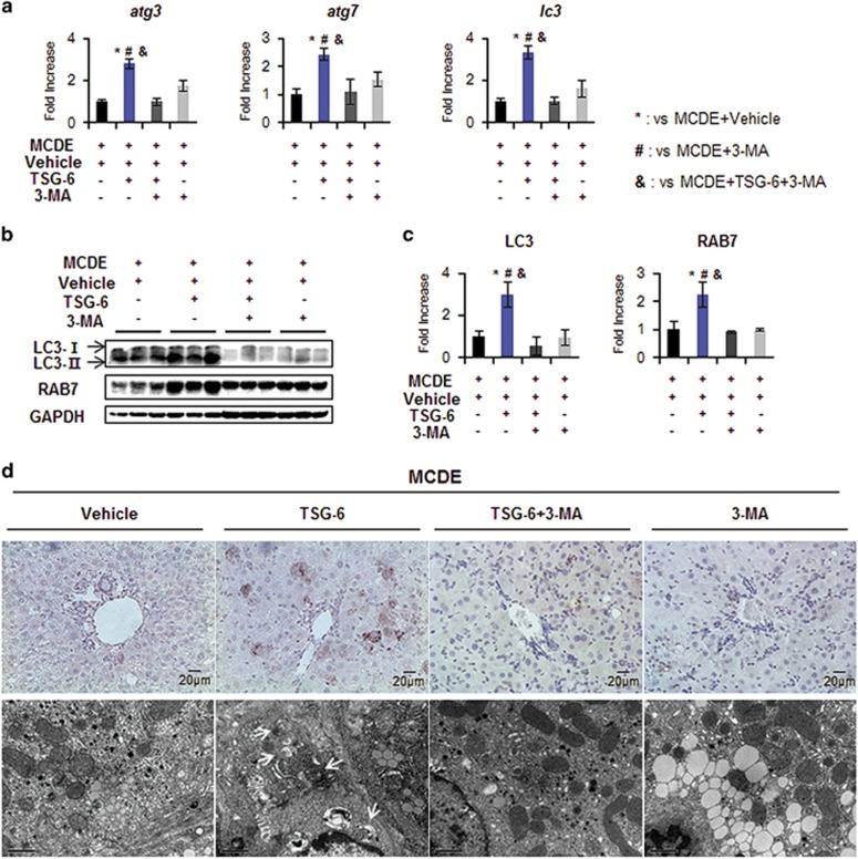 3-MA suppresses TSG-6-mediated autophagy in livers of MCDE-fed mice. ( a ) qRT-PCR analysis of atg3 , atg7 and lc3 in livers from the M+V, M+TSG-6, M+TSG-6+3-MA and M+3-MA groups. Mean±s.d. results are plotted ( n ⩾4 mice per group) (* P