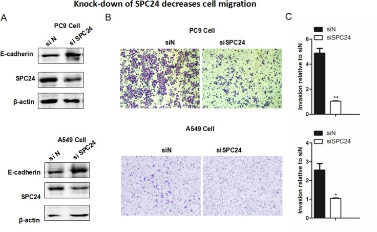 Knocking down SPC24 suppresses cellular migration in lung cancer cell lines ( A ) Western blots of the EMT markers, including E-cadherin, Vimentin, N-cadherin,along with SPC24, are shown in SPC24-knockdown and control cells. ( B ) Migration of the knockdown and control cells was evaluated by Transwell migration assay. ( C ) Quantification of the cellular migration shown in (B). (Mean ± S.D., n = 3).