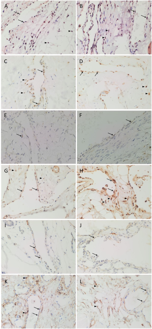 3,3′-Diaminobenzidine immunohistochemical-stained images demonstrating the expression of Nanog [ (A,B) , red], pSTAT3 [ (C,D) , brown], OCT4 [ (E,F) , brown], SOX2 [ (G,H) , brown], SALL4 [ (I,J) , brown], and CD44 [ (K,L) , brown] in subcutaneous venous malformation (SCVM) (A,C,E,G,I,K) and intramuscular venous malformation (IMVM) (B,D,F,H,J,L) . Endothelial staining of all six embryonic stem cell markers was present on the endothelium within both SCVM and IMVM samples. Nanog (A,B) , pSTAT3 (C,D) , SOX2 (G,H) , and CD44 (K,L) were also expressed on cells ( arrowheads ) away from the endothelium in both SCVM and IMVM samples. Nuclei were counterstained with hematoxylin (blue). Original magnification: 400×.