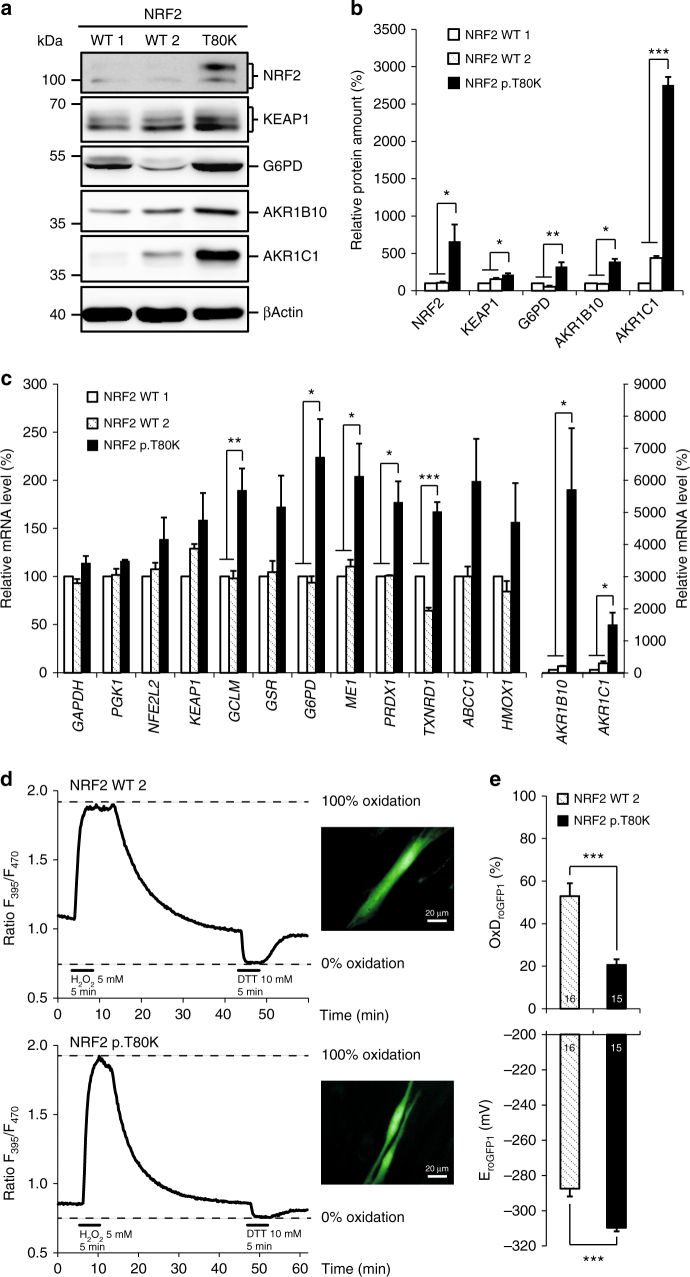 Increased stabilization and activation of mutant NRF2. a Representative western blot of endogenous level of NRF2, KEAP1, G6PD, AKR1B10 and AKR1C1 in protein lysates of human primary fibroblast cell lines from two controls (NRF2 WT 1, WT 2) and patient 1 with NRF2 p.T80K variant. Full blots are shown in Supplementary Fig. 6 . b Quantitative analysis of western blot images illustrating the endogenous level of NRF2, KEAP1, G6PD, AKR1B10 and AKR1C1 relative normalized to ACTB and NRF2 WT 1. c qRT–PCR analysis of NFE2L2, KEAP1 and target gene expression in primary fibroblast cell lines from two controls (NRF2 WT 1, WT 2) and patient 1 with NRF2 p.T80K variant. AKR1B10 and AKR1C1 are visualized on a separated X axis due to the high range. Expression is normalized to that of ACTB . % of mRNA is equal to 2 −∆∆CT and normalized relative to NRF2 WT 1. Redox calibration confirms full functionality of roGFP1 as well as identical response ranges for NRF2 WT 2 and NRF2 p.T80K fibroblast cells. d Response range calibration of an exemplary NRF2 WT 2 and NRF2 p.T80K fibroblast cell performed as a continuous recording of the roGFP1 ratio F 395 /F 470 within a ROI of cytoplasm of the cell, scale bar is 20 µM. Plotted traces represent full oxidation (R ox, induced by 5 mM H 2 O 2 , 5 min) and full reduction (R red , induced by 10 mM DTT, 5 min). After calibration the relative degrees of roGFP1 oxidation and corresponding roGFP1 redox potentials can be calculated. e Baseline redox conditions of NRF2 WT 2 and NRF2 p.T80K fibroblasts. Upper diagram shows the relative level of roGFP1 oxidation of NRF2 WT 2 and NRF2 p.T80K cells at rest (OxD roGFP1 , Eq. 1). Lower diagram represents corresponding steady-state roGFP1 redox potential (E roGFP1 , Eq. 2). b , c Data are given as means ± SEM, n ≥ 3 independent experiments. Data were analyzed by one-way analysis of variance with multiple comparisons: * p ≤ 0.05, ** p ≤ 0.01, *** p ≤ 0.001. e Data are given as means ± SEM. Number of measured cells are given within the bar. Statistical differences were obtained with unpaired Welch's t -test: *** p ≤ 0.001