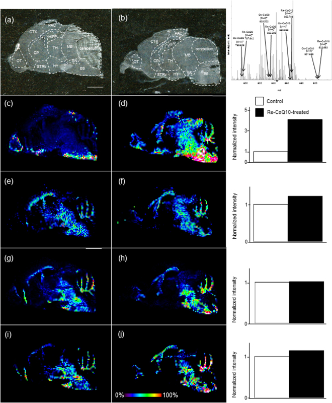Imaging mass spectrometry (IMS) of CoQs. Optical image of a sagittal tissue section from the mouse brain ( a ) control and ( b ) Re-CoQ10-treated mouse). MS spectra reconstructed image of Re-CoQ10 ( c ) control and ( d ) Re-CoQ10-treated mouse, Ox-CoQ10 ( e ) control and ( f ) Re-CoQ10-treated mouse <t>Re-CoQ9</t> ( g ) control and ( h ) Re-CoQ10-treated mouse and Ox-CoQ9 ( i ) control and ( j ) Re-CoQ10-treated mouse. The obtained image data is presented using a rainbow scale and normalized versus total ion count (right bar chart); scale bars, 500 μm. Olfactory tuberculum, OT; caudate-putamen, CP; corpus callosum, CC; parietal association cortex, PAC; midbrain, MB; thalamus, TH; hippocampus, HIPP; hypothalamus; HY, substantia nigra, SN; ventral striatum, STRv; brain stem (BS), cerebral cortex (CTX).