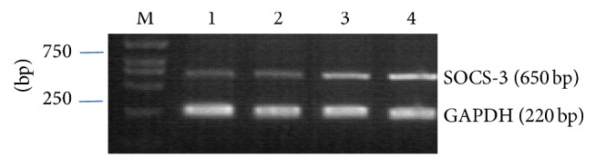 RT-PCR analysis of SOCS-3 mRNA expression after transfected with Stealth siRNA at 48 h. M: marker; lane 1, 2: cells transfected with Stealth siRNA; lane 3: cells transfected negative control; and lanes 4: untransfected cells. GAPDH expression was used as an internal control. Molecular weight is shown on the left.