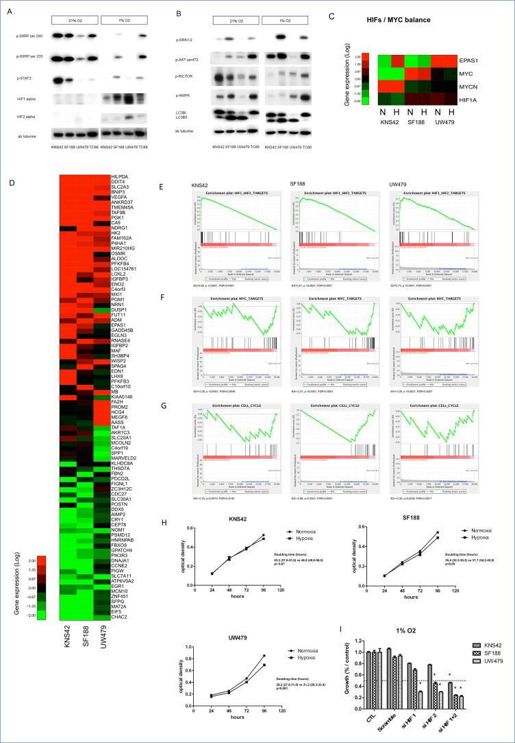 Impact of hypoxia (1% O2) on mTOR pathway activation, gene expression and proliferation in KNS42, SF188 and UW479 cell lines Figure 2A and 2B : Comparative immunoblotting analyses of mTOR pathway activation in KNS42, SF188, UW479 and the patient-derived cell line TC68 cultured in both normoxic and hypoxic conditions. Figure 2C, 2D, 2E, 2F, 2G, 2H : Comparative transcriptomic analyses. The relative expressions of HIF-1/2α and MYC are described in Figure 2C . Unsupervised analyses showing the top genes significantly upregulated or down-regulated in response to hypoxia (1% O2) comparatively to normoxia conditions are described in Figure 2D . Gene set enrichment analysis testing HIFs gene targets is shown in Figure 2E , MYC gene targets in Figure 2F and genes involved in cell cycle progression in Figure 2G . Figure 2H is presenting the impact of hypoxia on the proliferations of KNS42, SF188 and UW479, assessed by a colorimetric proliferation assay using crystal violet and the calculation of doubling time. In the Figure 2I , the effect on proliferation of siRNA transient transfection against HIF-1α, HIF-2α or both in SF188, KNS42 and UW479 cell lines in hypoxia. This effect was measured in triplicate and compared at 72 hours relatively to the control growth. *: p