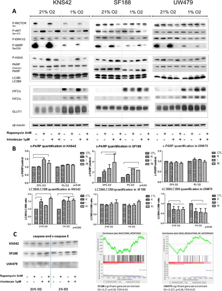 Cell effects of rapamycin, irinotecan and the combination and impact on the mTOR-HIF-1/2α pathway in KNS42, SF188 and UW479 in both normoxic and hypoxic conditions The immunoblotting analyses of the protein expressions are presented for the cleaved PARP, phospho-H2AX and LC3B as markers of apoptosis, double strand breaks and autophagy, respectively, and for the phosphorylated forms of RICTOR, AKT, ERK and S6RP as markers of mTOR pathway and HIF-1/2α protein accumulations in Figure 5A . The Figure 5B is illustrated the quantification of western blot analyses (c-PARP/control ratio and LC3BI/LC3BII ratio). The Figure 5C is presented cleaved-caspase 3 western blot analysesfor each cell line and the significant gene set enrichment analyses testing apoptosis genes in SF188 and autophagy pathway in UW479.