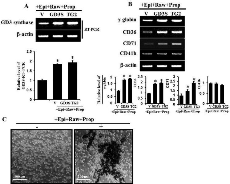 GD3 synthase expression and expression of several erythroid differentiation marker genes induced by α1-AR/TG2-mediated signaling K562 cells were transfected with GD3 synthase (GD3S) and TG2 cDNAs. Without α1-AR antagonist prazosin, cells were treated with α2-AR and β-AR-specific antagonists such as rauwolscine and propranolol in the presence of 10 μM epinephrine, classified as +Epi+Raw+Prop. Then, 1 μg of total RNA isolated from K562 cells was subjected to RT-PCR using primers specifically designed for megakaryotic or several erythroid lineage marker genes, as described in Experimental Procedures. β-Actin mRNA expression indicated that equal amounts of mRNA were used for RT-PCR in each lane. ( A ) RT-PCR of GD3 expression induced by α1-AR/TG2-mediated signaling. ( B ) Induction of several differentiation marker genes by α1-AR/TG2-mediated signaling. ( C ) Cells were incubated with 10 μM epinephrine for 2 days and benzidine staining was performed as described in the 'Materials and Methods' section. Data are representative of three experiments (means ± SD). * P