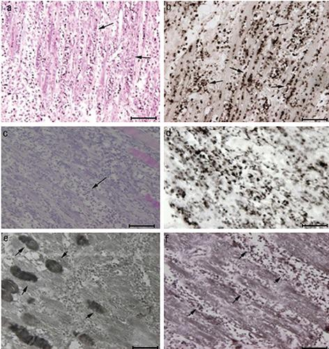 Histological changes in skeletal muscles on day three after empty vector or BMP-2 gene transfer. a,b) Skeletal muscles on day three after empty vector transfer. a) Haematoxylin-eosin staining showing enlarged muscle fibres filled with lymphocyte-like cells (arrows). b) CD68-positive cells (arrows). c-f ) Histological changes on day three after BMP-2 gene transfer. c) Haematoxylin-eosin staining showing enlarged spaces between fibres (arrow). d) CD68-positive cells. e) BMP-2-positive cells are detected only in less damaged muscles (arrows). f ) Myod1-positive cells localised around the spaces between muscle fibres (arrows). Scale bars: 100 > m.